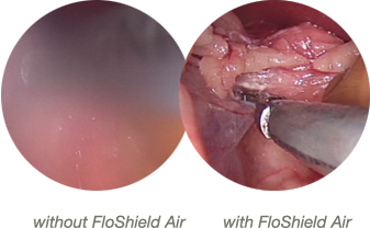 Laparoscope view with and without FloShield Air