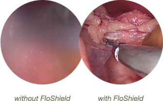 Laparoscope view with and without FloShield